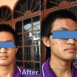 Testimoni Before After Jerawat dari Mahasiswa ITB